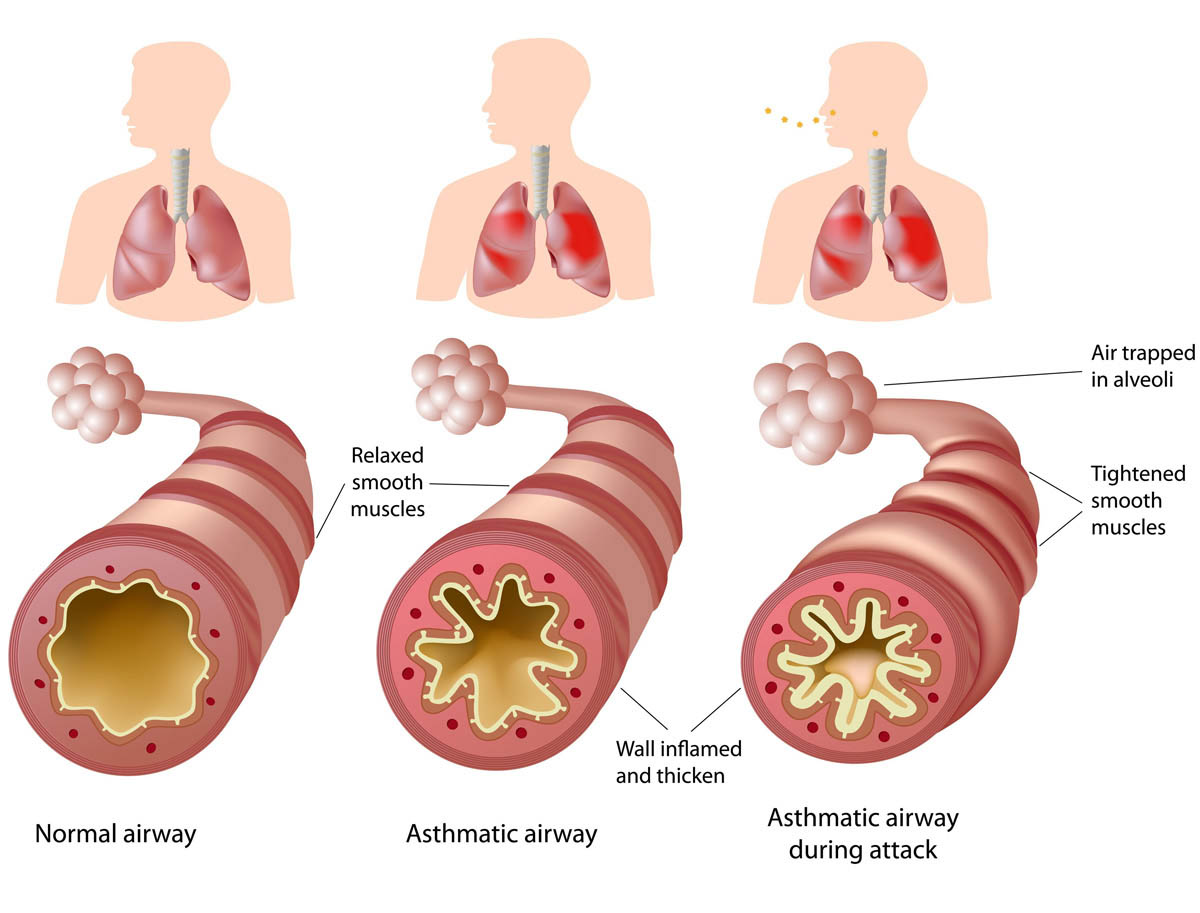 What causes my immune system to attack my lungs?